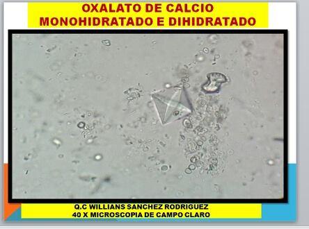 Dihidrato calcico calculos oxalato