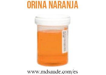 orina-naranja
