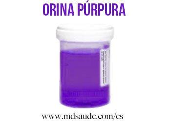 orina-purpura