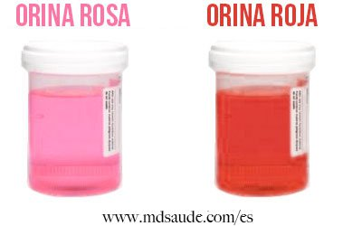 orina-rosa-roja